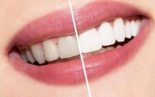 Отзыв об Эмаль для зубов Color professional